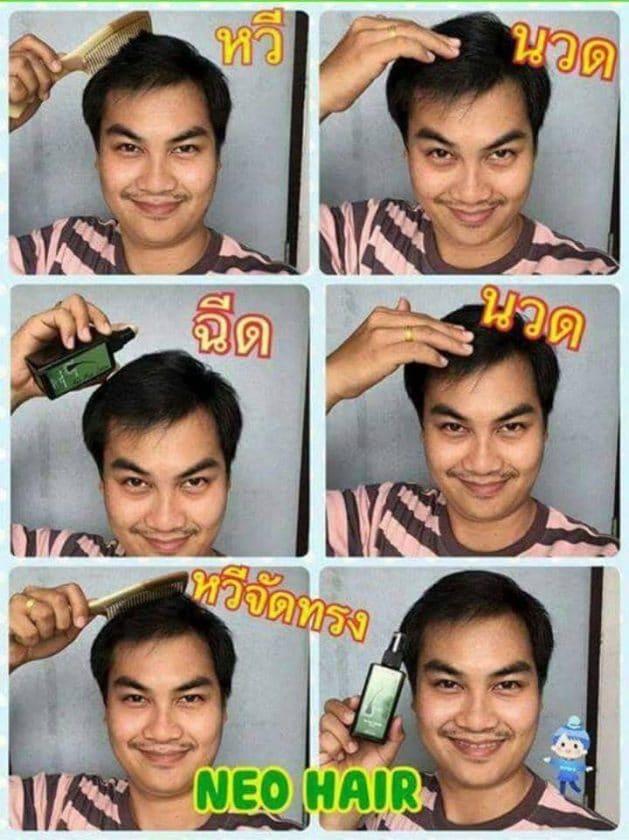 วิธีการใช้ Neo Hair Lotion ให้ได้ผลลัพธ์100%